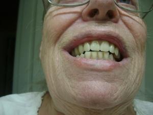 new-dentures-2016-005